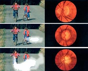 Glaukomverlauf