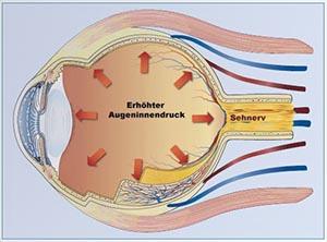 hoher Augeninnendruck