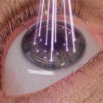 Augen Laser Chirurgie