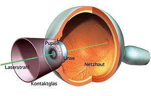Netzhautlaser-Augenlaserbehandlung