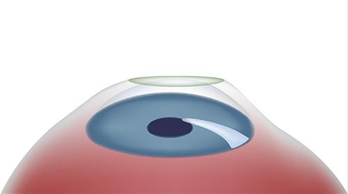 Verbandkontaktlinse