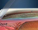 Minimal- invasive Glaukom-Chirurgie (MIGS)