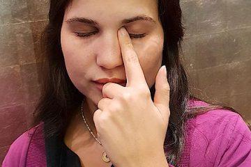 Tränenkanalverschluss