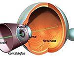Retinal laser